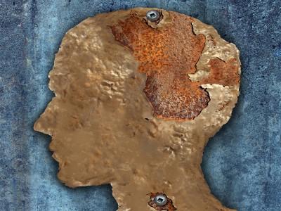 Beyin ve Alzheimer – Beyni Yaşlanmaktan Koruyun